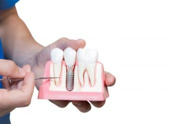 Things to Know Before Dental Implant