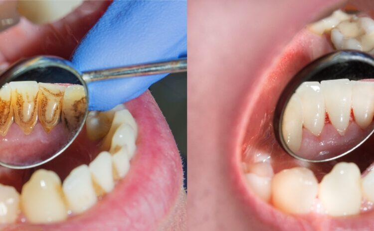 Diş Taşı Temizliği Hakkında Doğru Bilinen Yanlışlar